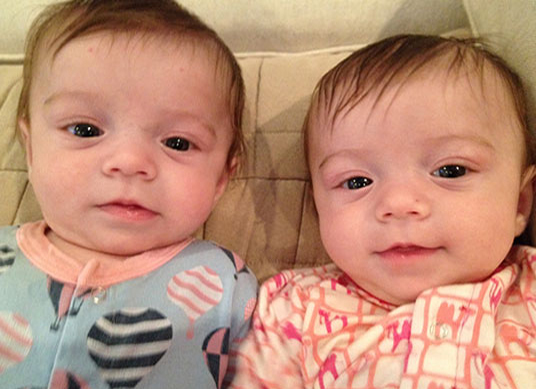 Texas Children's Fetal Center staff saves Louisiana twins with TTTS