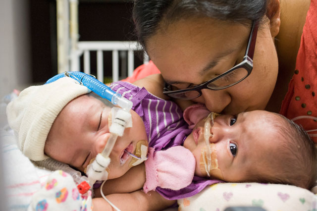 Doctors continue monitoring, planning for conjoined twins' separation