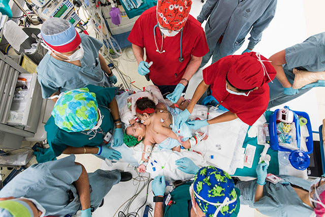 Hope, faith and expertise: Surgical team leads historical Mata conjoined twins surgery