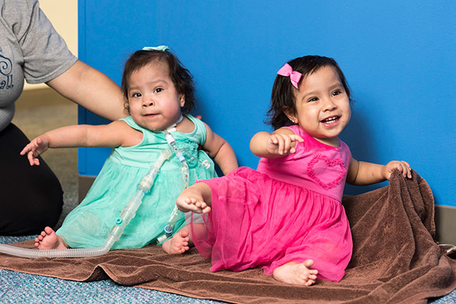 Hour-long documentary on Mata conjoined twins to air on Discovery Life Channel