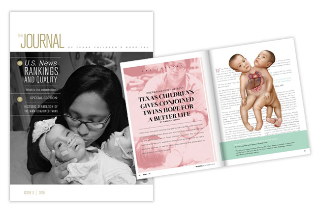 Third edition of The Journal features special section on separation of conjoined twins