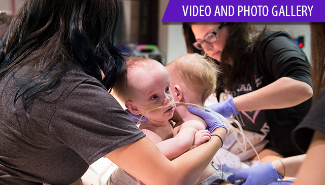 Conjoined identical twin girls successfully separated at Texas Children's Hospital